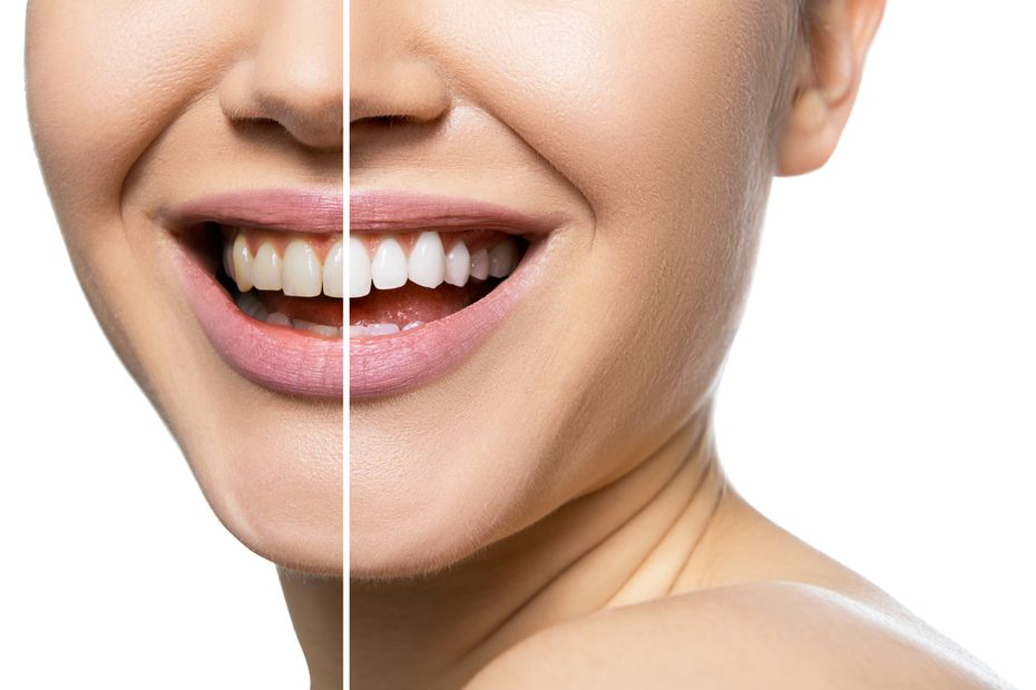 A before and after picture of an Edmonton dental patient's smiling mouth